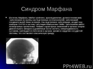 (Болезнь Марфана, Marfan syndrome, арахнодактилия, долихостеномелия) -заболевани