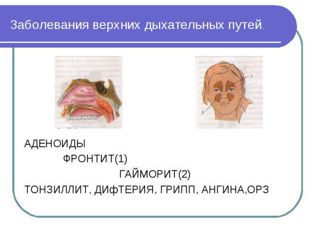 АДЕНОИДЫ АДЕНОИДЫ ФРОНТИТ(1) ГАЙМОРИТ(2) ТОНЗИЛЛИТ, ДИфТЕРИЯ, ГРИПП, АНГИНА,ОРЗ