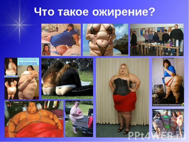 Что такое ожирение?
