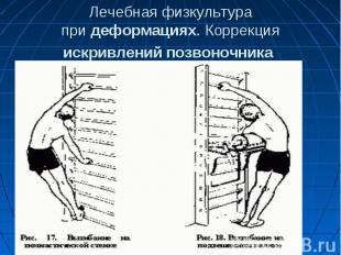 Лечебная физкультура придеформациях. Коррекция искривленийпозвоночни