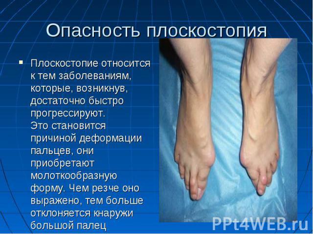 Опасность плоскостопия Плоскостопие относится к тем заболеваниям, которые, возникнув, достаточно быстро прогрессируют. Это становится причиной деформации пальцев, они приобретают молоткообразную форму. Чем резче оно выражено, тем больше отклон…