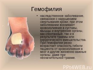наследственное заболевание, связанное с нарушением свертывания крови; при этом з