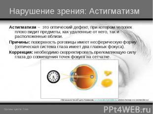 Астигматизм – это оптический дефект, при котором человек плохо видит предметы, к