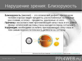 Близорукость (миопия) – это оптический дефект, при котором человек хорошо видит