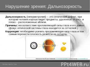 Дальнозоркость (гиперметропия) – это оптический дефект, при котором человек хоро