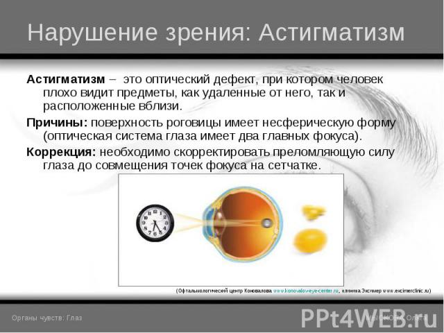 Астигматизм – это оптический дефект, при котором человек плохо видит предметы, как удаленные от него, так и расположенные вблизи. Астигматизм – это оптический дефект, при котором человек плохо видит предметы, как удаленные от него, так и расположенн…