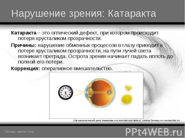 Катаракта – это оптический дефект, при котором происходит потеря хрусталиком прозрачности. Катаракта – это оптический дефект, при котором происходит потеря хрусталиком прозрачности. Причины: нарушение обменных процессов в глазу приводит к потере хру…