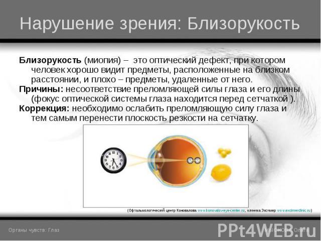 Близорукость (миопия) – это оптический дефект, при котором человек хорошо видит предметы, расположенные на близком расстоянии, и плохо – предметы, удаленные от него. Близорукость (миопия) – это оптический дефект, при котором человек хорошо видит пре…
