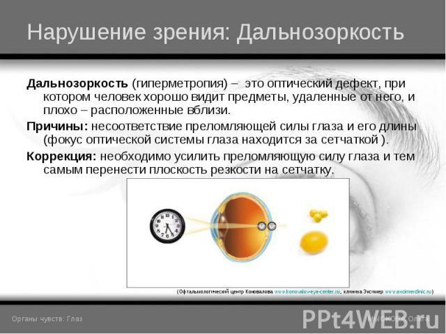 Дальнозоркость (гиперметропия) – это оптический дефект, при котором человек хорошо видит предметы, удаленные от него, и плохо – расположенные вблизи. Дальнозоркость (гиперметропия) – это оптический дефект, при котором человек хорошо видит предметы, …