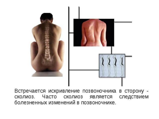Встречается искривление позвоночника в сторону - сколиоз. Часто сколиоз является следствием болезненных изменений в позвоночнике. Встречается искривление позвоночника в сторону - сколиоз. Часто сколиоз является следствием болезненных изменений в поз…