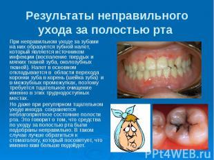 Результаты неправильного ухода за полостью рта При неправильном уходе за зубами