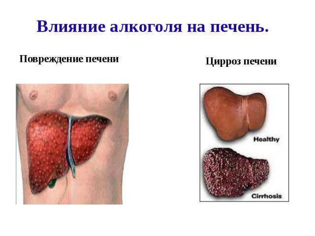 Влияние алкоголя на печень.