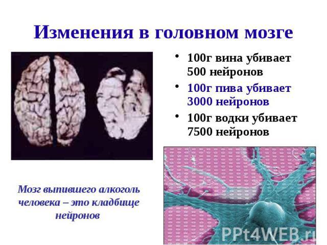 Изменения в головном мозге 100г вина убивает 500 нейронов 100г пива убивает 3000 нейронов 100г водки убивает 7500 нейронов