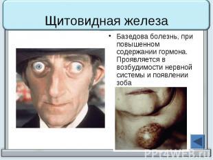 Щитовидная железа Базедова болезнь, при повышенном содержании гормона. Проявляет