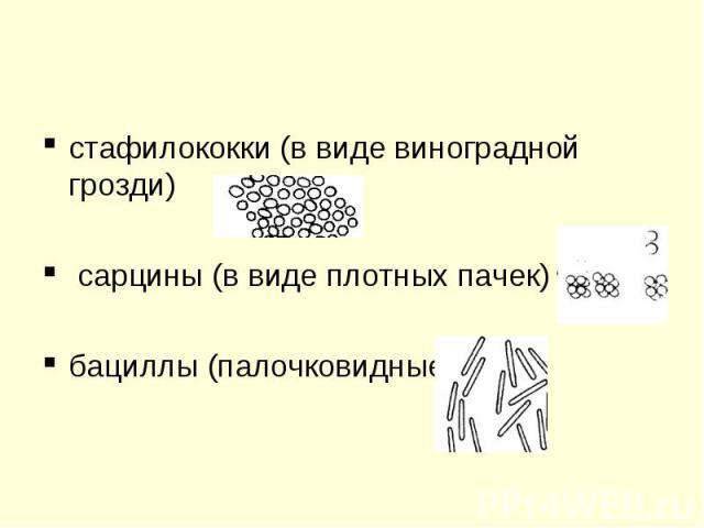 стафилококки (в виде виноградной грозди) сарцины (в виде плотных пачек) бациллы (палочковидные)