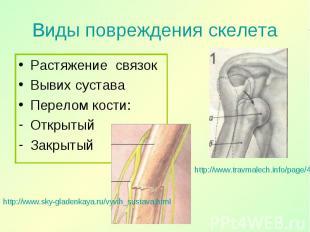 Растяжение связок Растяжение связок Вывих сустава Перелом кости: Открытый Закрыт