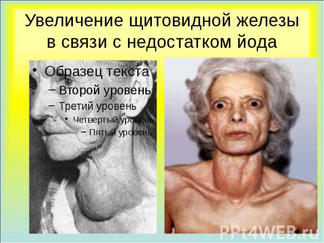 Увеличение щитовидной железы в связи с недостатком йода
