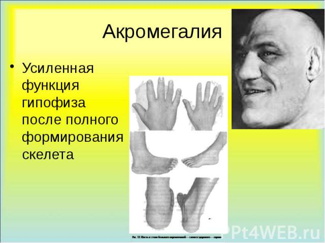 Акромегалия Усиленная функция гипофиза после полного формирования скелета