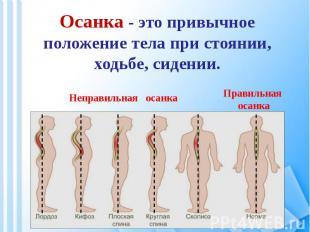 Осанка - это привычное положение тела при стоянии, ходьбе, сидении.