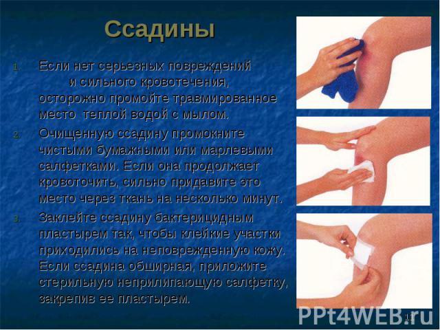 Если нет серьезных повреждений и сильного кровотечения, осторожно промойте травмированное место теплой водой с мылом. Если нет серьезных повреждений и сильного кровотечения, осторожно промойте травмированное место теплой водой с мылом. Очищенную сса…