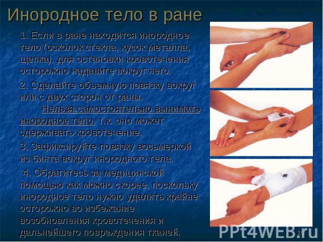 1. Если в ране находится инородное тело (осколок стекла, кусок металла, щепка), для остановки кровотечения осторожно надавите вокруг него. 1. Если в ране находится инородное тело (осколок стекла, кусок металла, щепка), для остановки кровотечения ост…