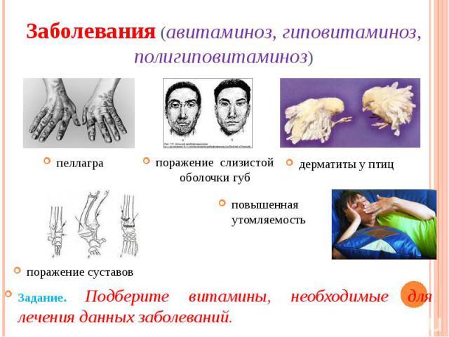 Заболевания (авитаминоз, гиповитаминоз, полигиповитаминоз)