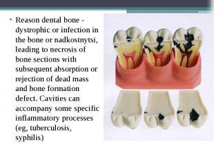 Reason dental bone - dystrophic or infection in the bone or nadkostnytsi, leadin