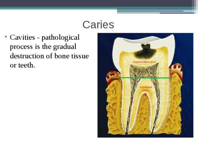 Caries Cavities - pathological process is the gradual destruction of bone tissue or teeth.