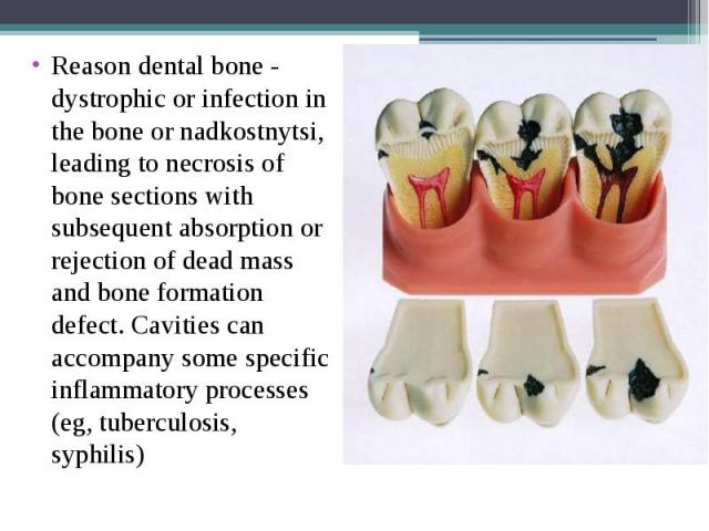 Reason dental bone - dystrophic or infection in the bone or nadkostnytsi, leading to necrosis of bone sections with subsequent absorption or rejection of dead mass and bone formation defect. Cavities can accompany some specific inflammatory processe…