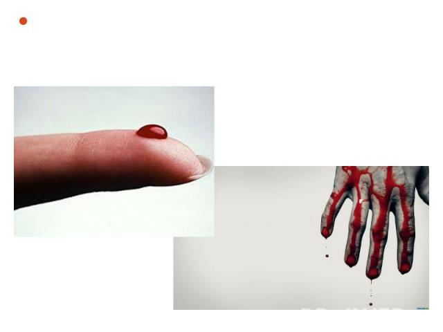 Blood - a rare connective tissue of animals that perform important functions in the maintenance of his life. Blood - a rare connective tissue of animals that perform important functions in the maintenance of his life.