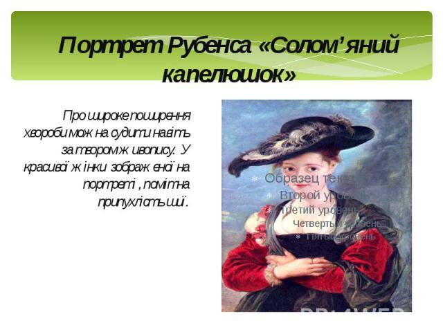 Портрет Рубенса «Солом'яний капелюшок» Про широке поширення хвороби можна судити навіть за твором живопису. У красивої жінки зображеної на портреті , помітна припухлість шиї.