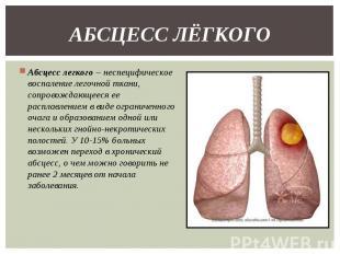 Абсцесс легкого – неспецифическое воспаление легочной ткани, сопровождающееся ее