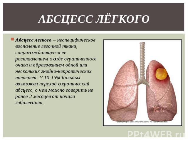Абсцесс легкого – неспецифическое воспаление легочной ткани, сопровождающееся ее расплавлением в виде ограниченного очага и образованием одной или нескольких гнойно-некротических полостей. У 10-15% больных возможен переход в хронический абсцесс, о ч…