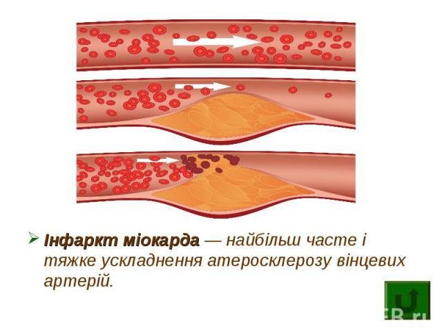 Інфаркт міокарда — найбільш часте і тяжке ускладнення атеросклерозу вінцевих артерій.