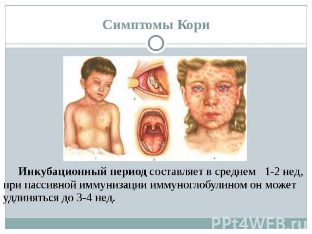 Симптомы Кори Инкубационный периодсоставляет в среднем 1-2 нед, при пассивной иммунизации иммуноглобулином он может удлиняться до 3-4 нед.