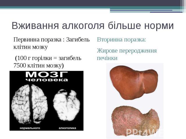 Вживання алкоголя більше норми Первинна поразка : Загибель клітин мозку (100 г горілки = загибель 7500 клітин мозку)
