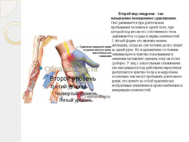 Второй вид синдрома - так называемое позиционное сдавливание. Оно развивается при длительном пребывании человека в одной позе, при которой под весом его собственного тела сдавливаются сосуды и нервы конечностей. В лёгкой форме это явление можно набл…