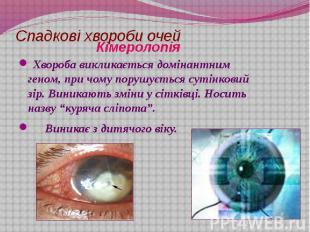 Спадкові хвороби очей Хвороба викликається домінантним геном, при чому порушуєть