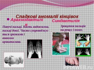 Спадкові аномалії кінцівок Арахнодактилія