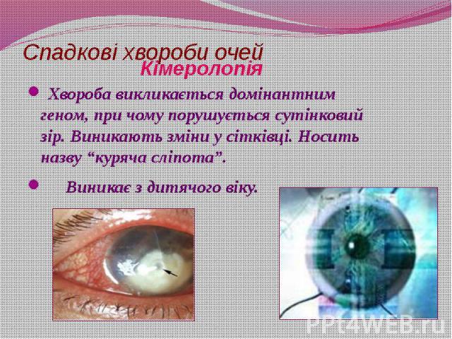"""Спадкові хвороби очей Хвороба викликається домінантним геном, при чому порушується сутінковий зір. Виникають зміни у сітківці. Носить назву """"куряча сліпота"""". Виникає з дитячого віку."""