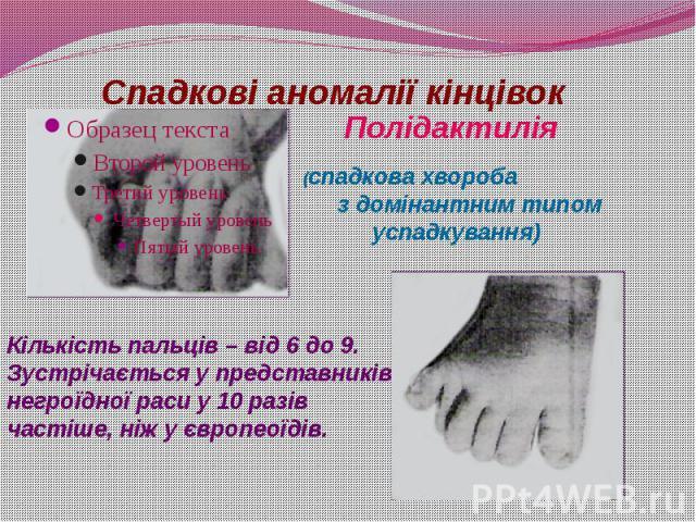 Спадкові аномалії кінцівок