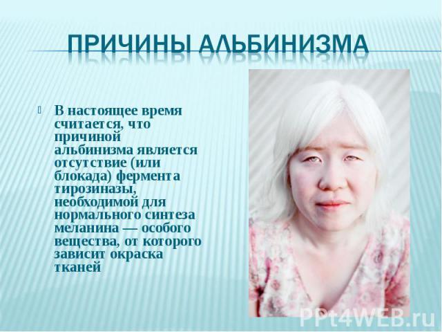 В настоящее время считается, что причиной альбинизма является отсутствие (или блокада) фермента тирозиназы, необходимой для нормального синтеза меланина — особого вещества, от которого зависит окраска тканей В настоящее время считается, что причиной…