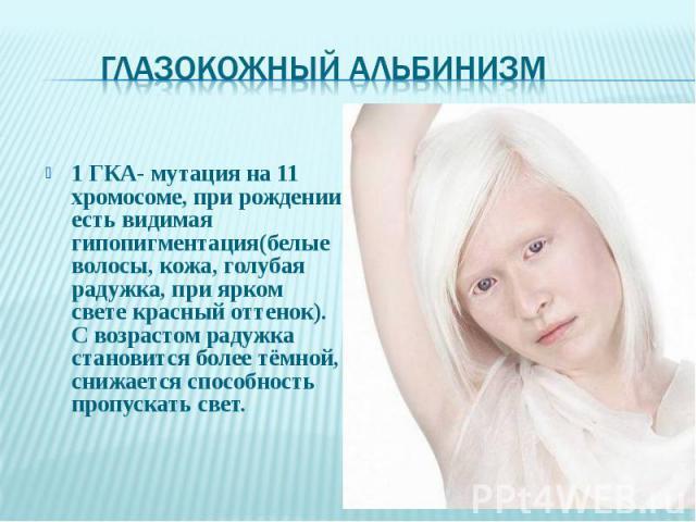 1 ГКА- мутация на 11 хромосоме, при рождении есть видимая гипопигментация(белые волосы, кожа, голубая радужка, при ярком свете красный оттенок). С возрастом радужка становится более тёмной, снижается способность пропускать свет. 1 ГКА- мутация на 11…