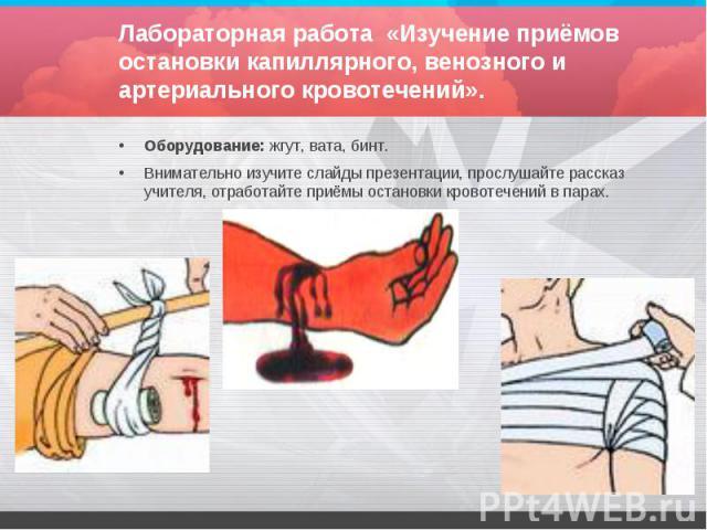 Лабораторная работа «Изучение приёмов остановки капиллярного, венозного и артериального кровотечений». Оборудование: жгут, вата, бинт. Внимательно изучите слайды презентации, прослушайте рассказ учителя, отработайте приёмы остановки кровотечений в парах.