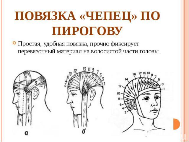 Простая, удобная повязка, прочно фиксирует перевязочный материал на волосистой части головы Простая, удобная повязка, прочно фиксирует перевязочный материал на волосистой части головы