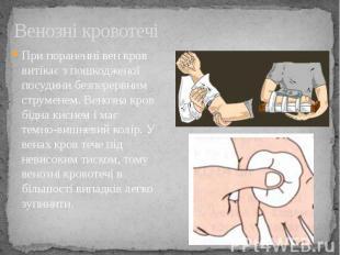 Венозні кровотечі При пораненні вен кров витікає з пошкодженої посудини безперер