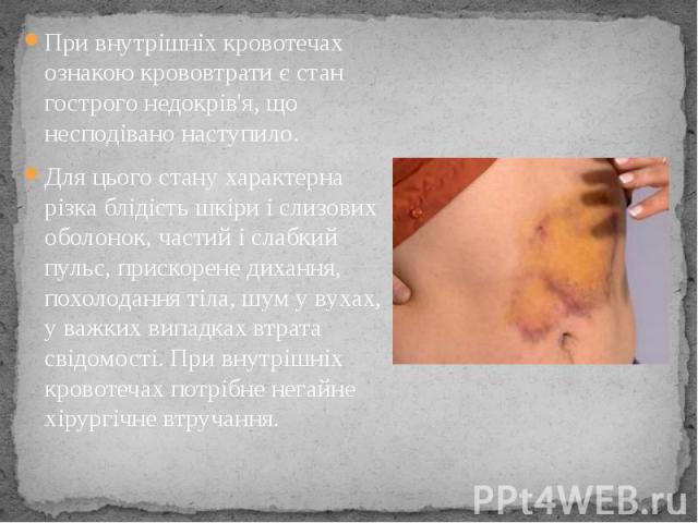 При внутрішніх кровотечах ознакою крововтрати є стан гострого недокрів'я, що несподівано наступило. Для цього стану характерна різка блідість шкіри і слизових оболонок, частий і слабкий пульс, прискорене дихання, похолодання тіла, шум у вухах, у важ…