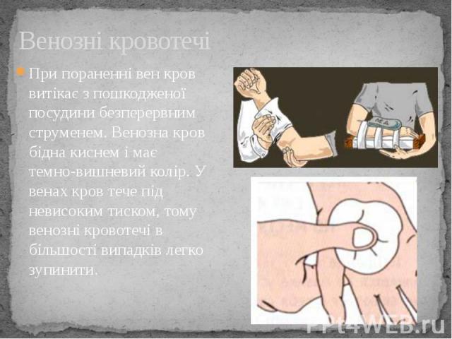 Венозні кровотечі При пораненні вен кров витікає з пошкодженої посудини безперервним струменем. Венозна кров бідна киснем і має темно-вишневий колір. У венах кров тече під невисоким тиском, тому венозні кровотечі в більшості випадків легко зупинити.