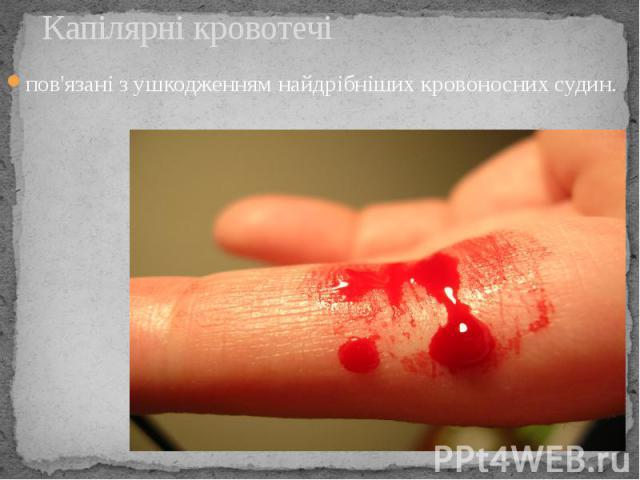 Капілярні кровотечі пов'язані з ушкодженням найдрібніших кровоносних судин.