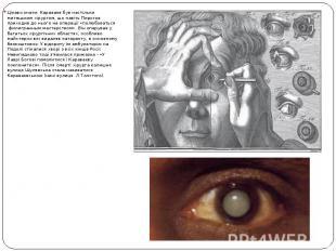 Цікаво знати: Караваєв був настільки митецьким хірургом, що навіть Пирогов прихо